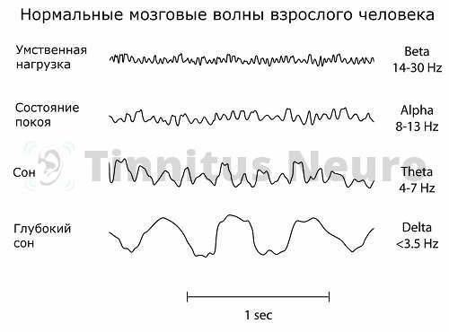 Фиксация записи волн на ЭЭГ