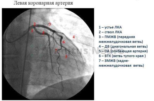 Рентгенологическая диагностика стеноза коронарных сосудов