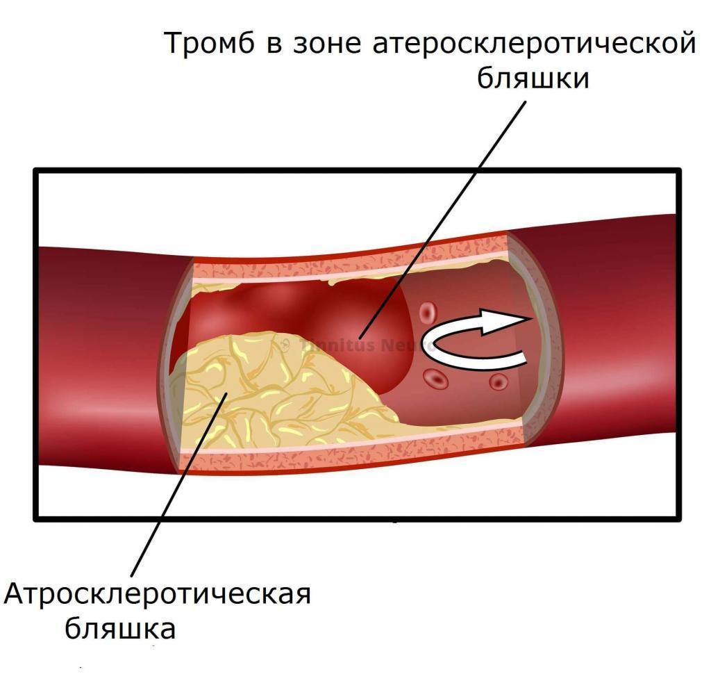Тромб и атеросклероз сочетаются