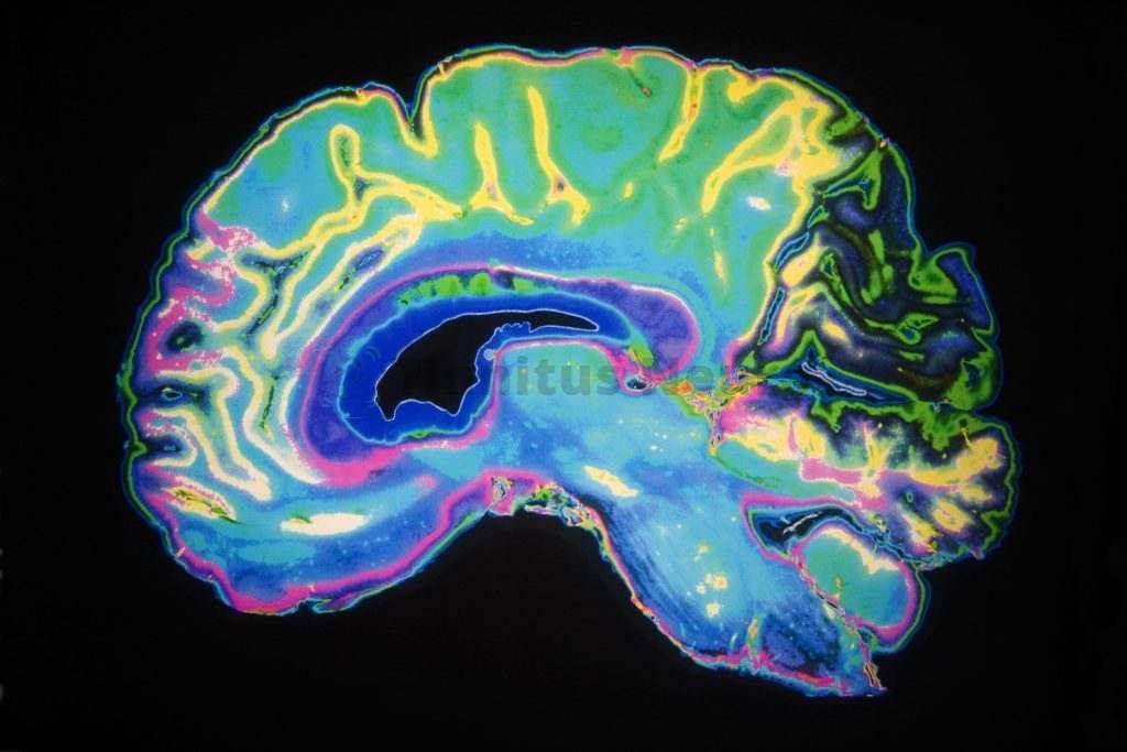 Стеноз сонной артерии приводит к ишемическому инсульту