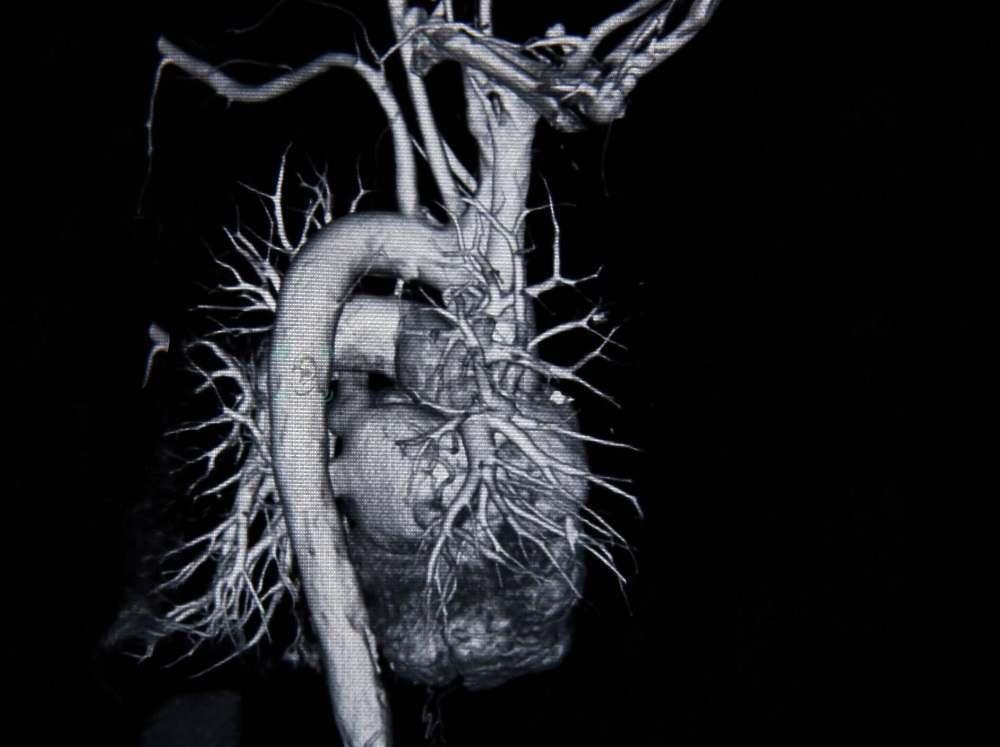 Артерии сердца и крупные стволы на МРТ