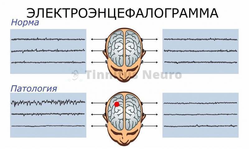 Электроэнцефалография - регистрация электрической активности мозга