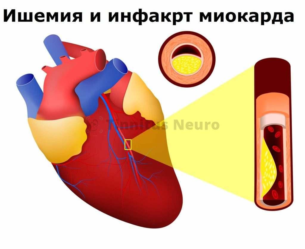 Стеноз артерии сердца бляшкой атеросклероза