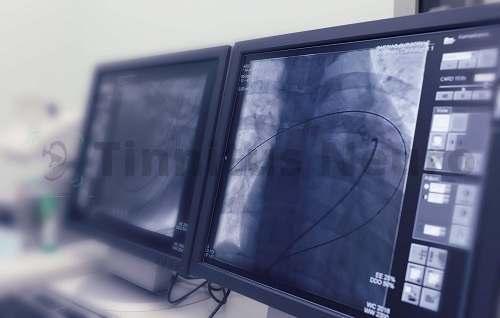Современные методы диагностики стенозов артерий