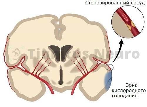Ишемия мозга проявлzется шумом в ушах