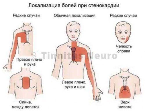 Гемодинамически значимый стеноз и боли