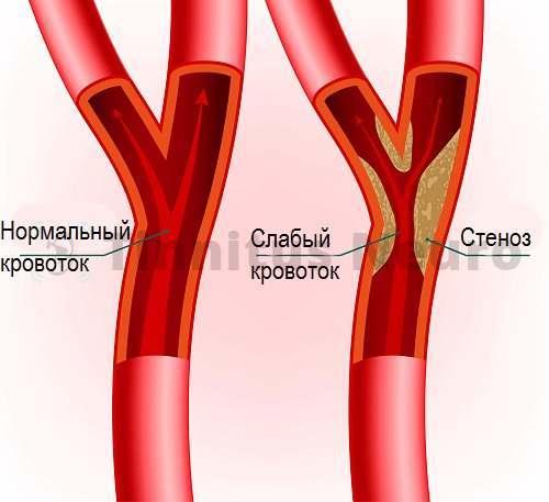 Атеросклеротический стеноз подключичных артерий