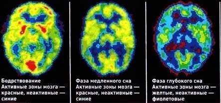 Так сон влияет на активность мозга