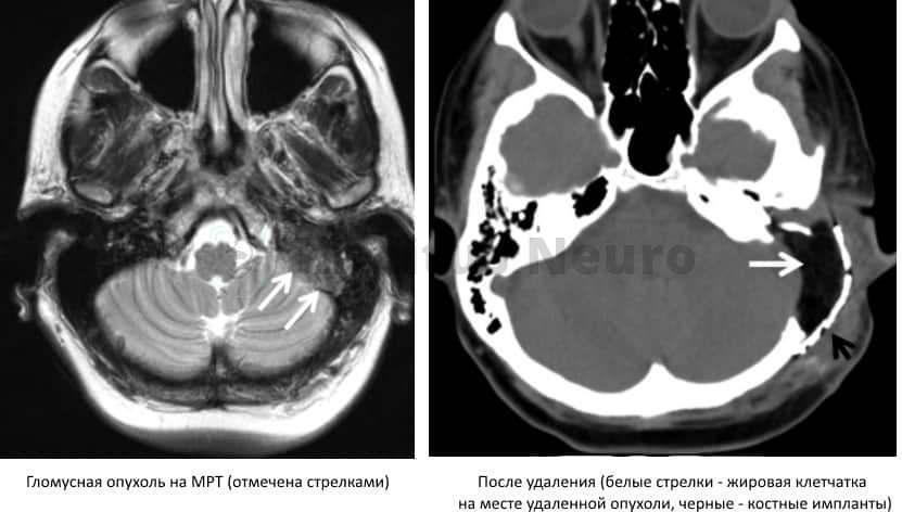 МРТ до и после операции по удалению гломусной опухоли