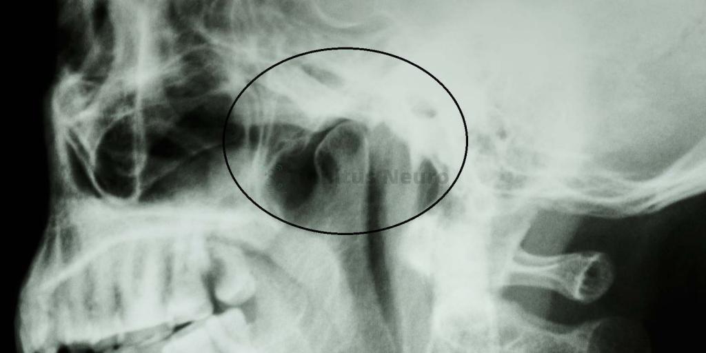 Снимок сустава на рентгенпленке