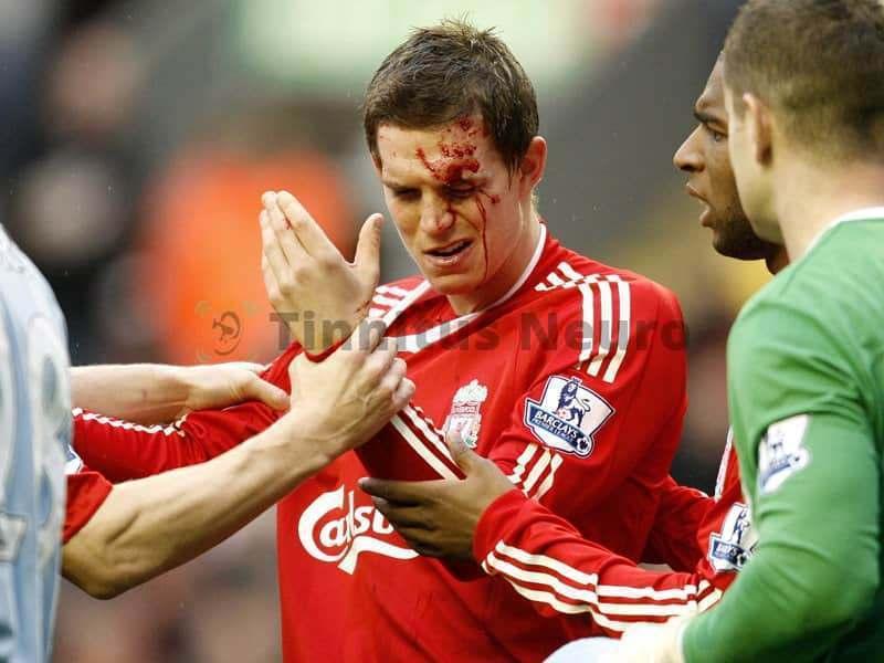 Футбол самый травматичный вид спорта, при тиннитусе вреден