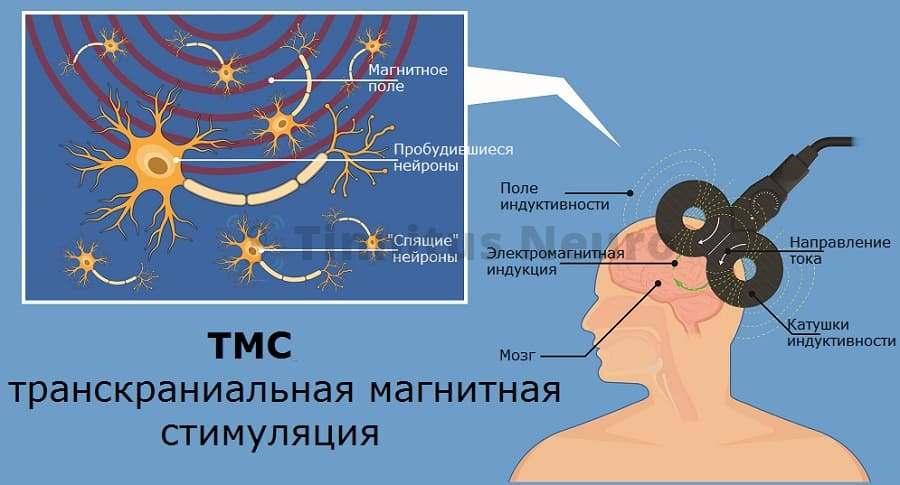 ТМС лечение тиннитуса в клинике