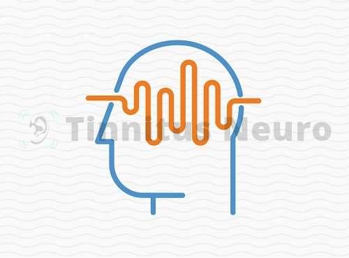 Крайне высокий частоты в лечении тиннитуса