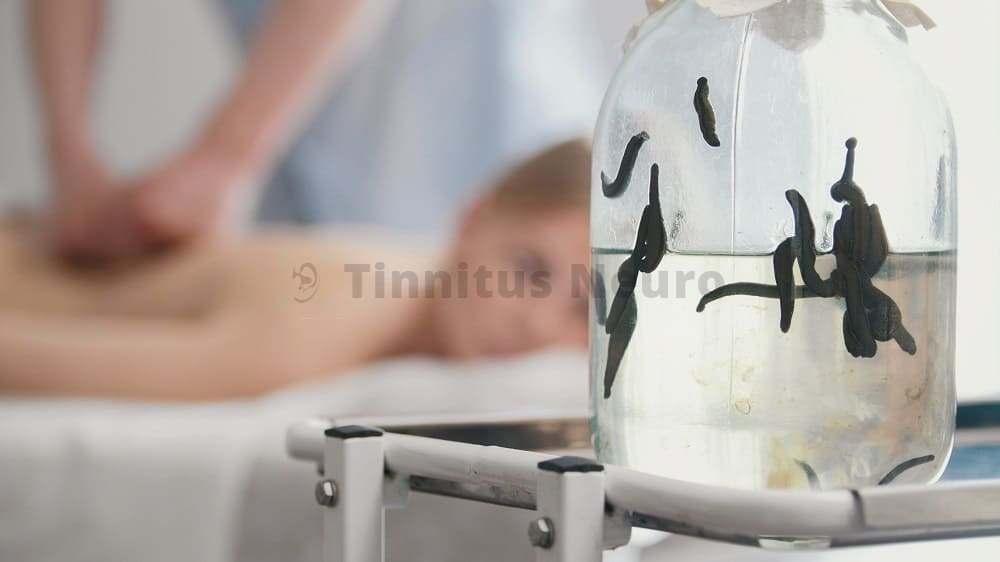 Медицинские пиявки в лечении тиннитуса