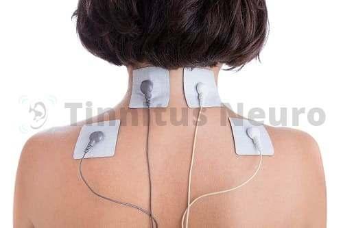 Стимуляция мышц шеи и спины в лечении тиннитуса